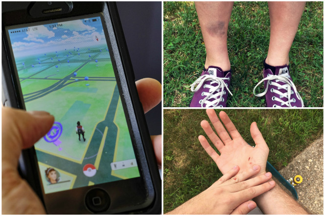 5 Times People Injured Themselves Playing Mobile Games