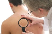 Rising Skin Cancer Rate