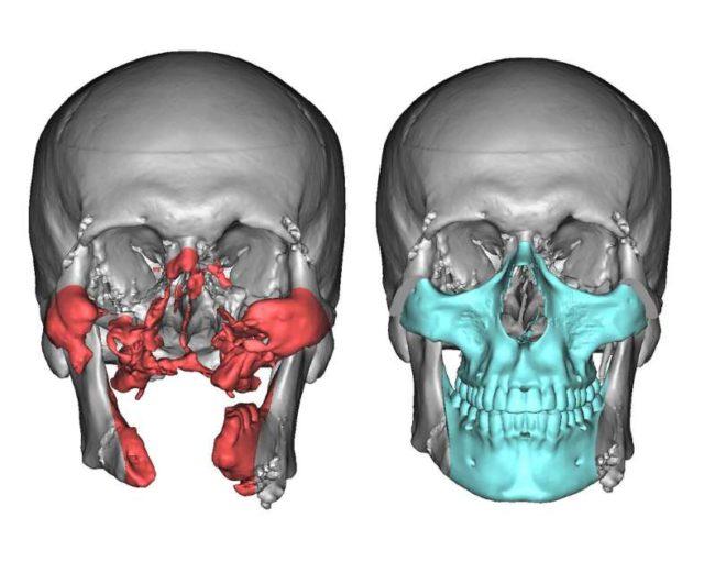 Face Transplants 3d Technology