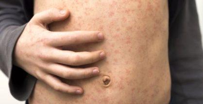 Measles Deaths